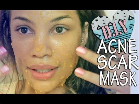 diy mask for acne scars diy acne scar fading mask acne tips