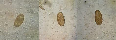 ascaris lumbricoides unfertilized real time microscopy