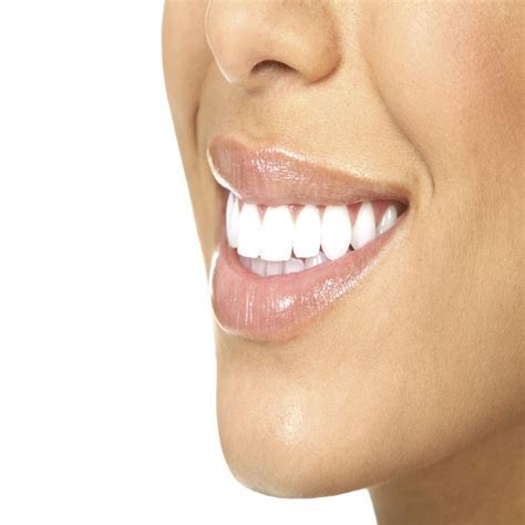 DeJesus Dental Teeth Whitening in Bridgeport, CT  Wedding