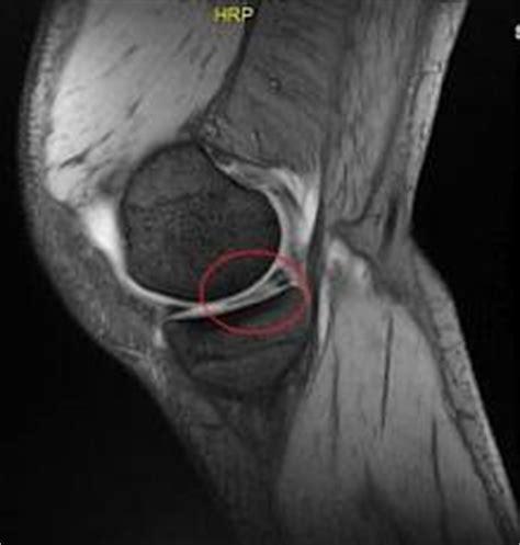 meniscopatia degenerativa interna patologia meniscale giuseppe maccauro