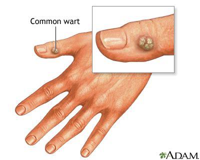 imagenes verrugas vulgares warts medlineplus medical encyclopedia
