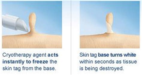there are various ways on how to remove skin tags at home