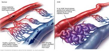 Overview arteriovenous malformation mayo clinic