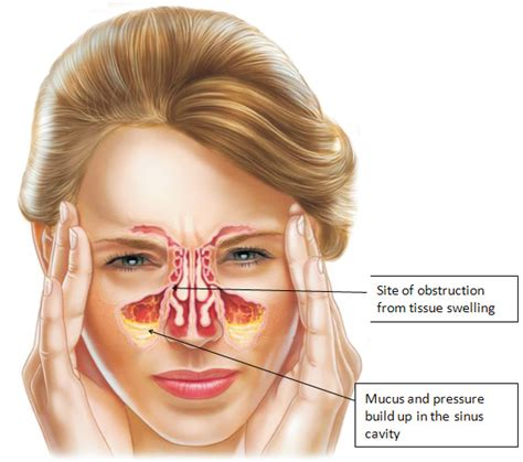 Asal Sinus ayurvedic hospital in kerala sinusitis sirovasthi treatment