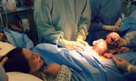 natural birth and c section natural caesarean video baby emerges from womb by itself