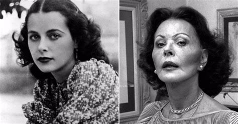 11 classic hollywood stars who had plastic surgery vintage everyday 11 classic hollywood stars who had plastic surgery