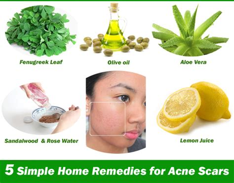 five simple and effective home remedies for acne scars