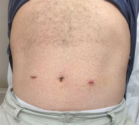 hernia c section scar symptoms about your hernia inguinal hernia symptoms causes