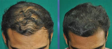 early female pattern hair loss hair loss treatment or male pattern baldness treatment