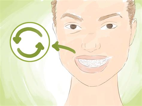 3 ways to look great with braces wikihow 3 ways to look good in ceramic braces wikihow