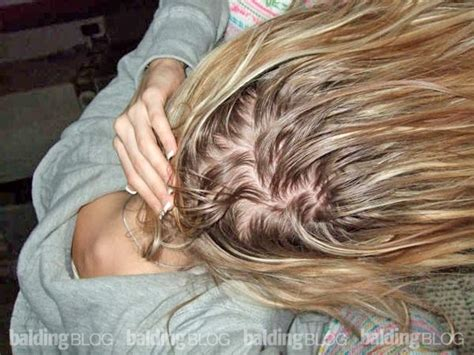 burning scalp scensation with braids woman with tingling scalp pain doctors can t find