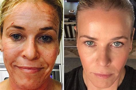 derm fx tattoo chelsea handler before and after profractional laser