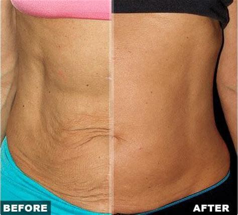 flabby belly after c section your ultimate skin tightening primer everything so far