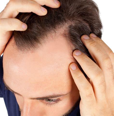hair loss treatment best hair loss treatment for