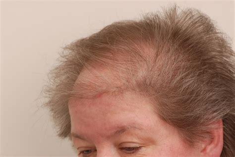 female pattern hair loss thyroid thyroid hair loss pattern www pixshark com images