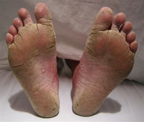 athlete s foot in shoes 8 facts about athlete s foot fact file