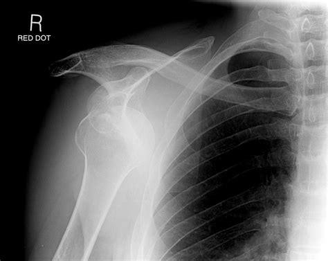 dislocated shoulder the shoulder