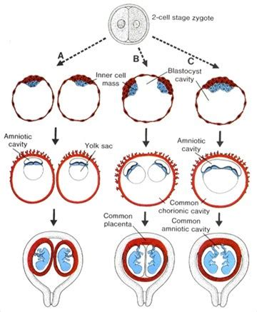 diagram of how identical are formed complications with identical maple suyrup diet