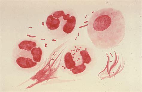 que son imagenes jpg y pdf wikipedia neisseria gonorrhoeae wikipedia la enciclopedia libre
