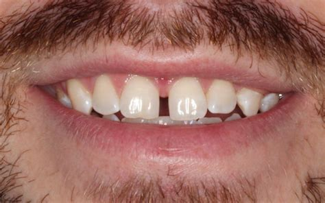 fix front teeth gap