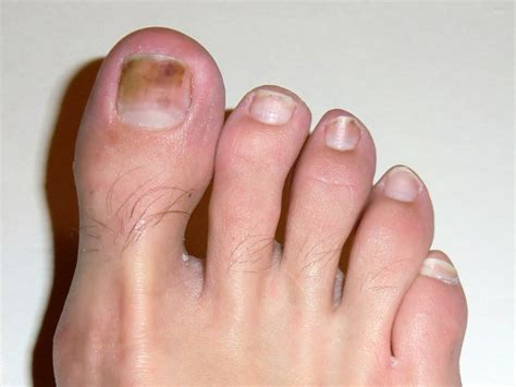 several toenails look skin color under them frostbite loomis adventures cing hiking fishing