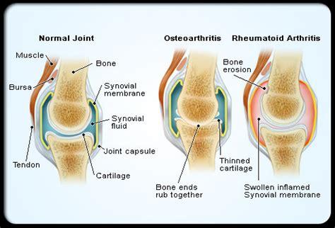 Suplemen Osteoarthritis jenis jenis radang sendi arthritis osteoarthritis vs rheutomaid arthritis dokita dokter kita