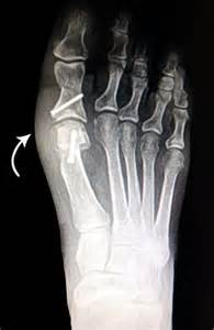 Akin Bunionectomy Bunion Surgery Before And After Pictures Lapidus Bunionectomy