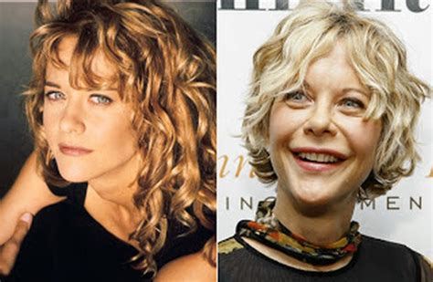when did meg ryan have a face lift hollywood celebrity meg ryan before and after surgery photos