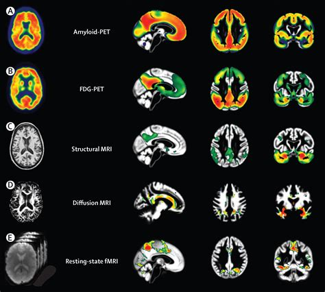 Multimodal imaging in Alzheimer's disease: validity and
