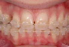 apparecchio denti interno costi casi clinici ortodonzia estetica