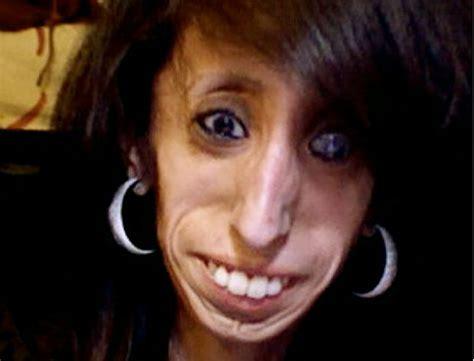 imagenes uñas feas самая худая женщина в мире разное приколы bigmir net