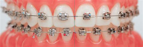 Dentist Chair by Damon Brackets Self Ligating Brackets Braces