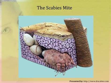 can bed bugs cause scabies how to kill scabies all think to know