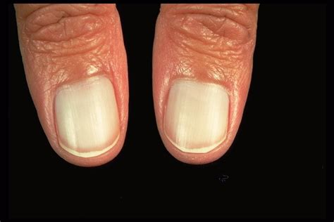 pale nail beds dermatology imagebank nail disorders