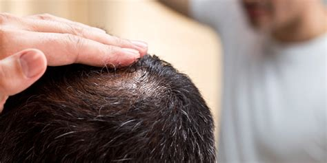 what percentage of men lose hair regaine 174 for men men s hair loss treatment