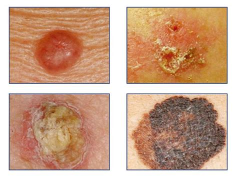 cancer de piel 203 best c 225 ncer y tumores images on pinterest