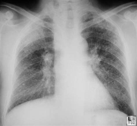 imaging in silicosis and coal worker pneumoconiosis learningradiology silicosis