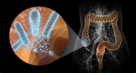 alimentazione appendicite la corretta interpretazione dell appendice riabilitata