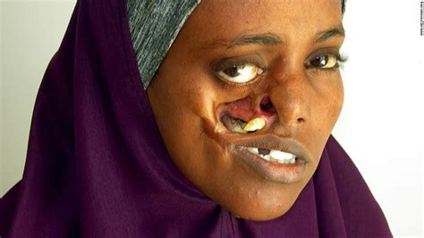 somali waits 23 years for surgery to fix shattered