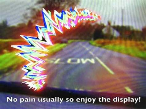 causes of flashing lights in peripheral vision visual migraine animation youtube