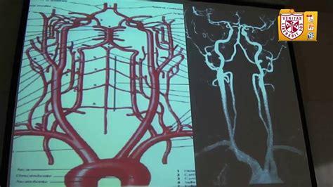 angiografia cerebral diagn 243 stico por imagen arteriograf 237 a cerebral
