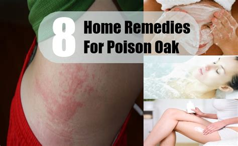 8 home remedies for poison oak treatments cure