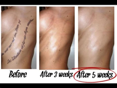 tattoo removal kit best the best tattoo removal guide remove tattoo without