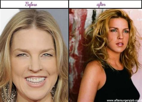 Diane Is Terrified Of Plastic Surgery by 10 Amazing Plastic Surgery Pictures Of Diana Krall Right