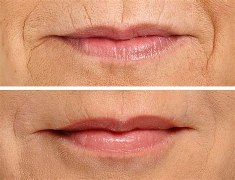 restylane silk for lips and lip lines irvine orange county