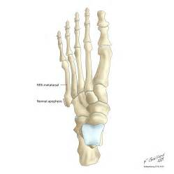 Avulsion fracture of the 5th metatarsal styloid radiology