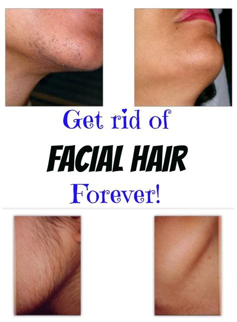 Best Way To Remove Hair On 65 Yr Old Woman | 65 best images about female sideburns on pinterest thick