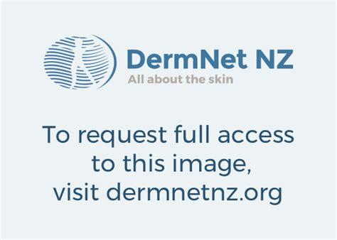 fitzpatrick skin phototype dermnet new zealand