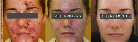 acne treatment philadelphia amp mainline pa