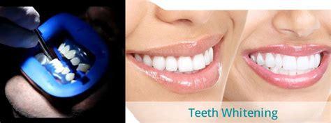 laser teeth whitening treatment  work pros